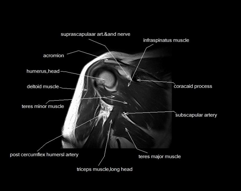 Mri Shoulder Anatomy Shoulder Coronal Anatomy Free Cross