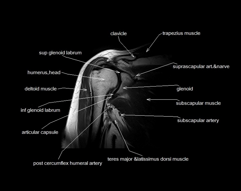 MRI shoulder anatomy | shoulder coronal anatomy | free cross ...