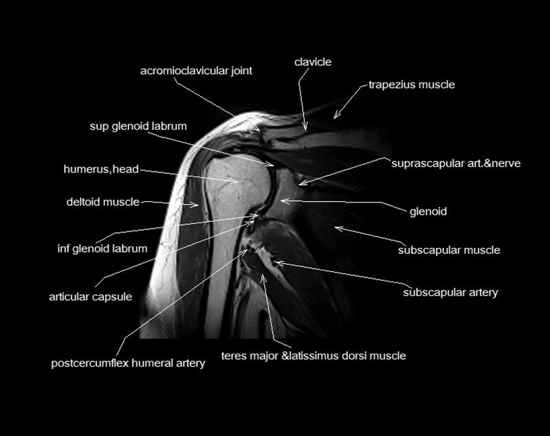 MRI shoulder anatomy   shoulder coronal anatomy   free cross ...
