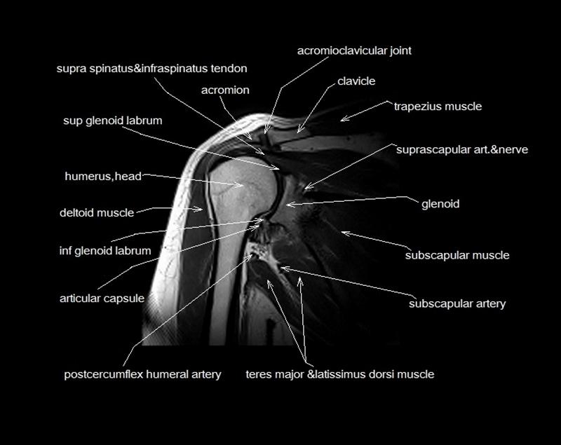 MRI shoulder anatomy | shoulder coronal anatomy | free cross ...
