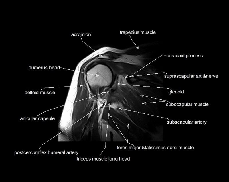 Mri anatomy shoulder