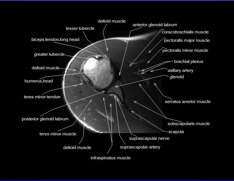 Shoulder Anatomy Mri Shoulder Axial Anatomy Free Cross
