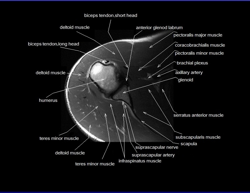 shoulder anatomy | mri shoulder axial anatomy | free cross sectional ...