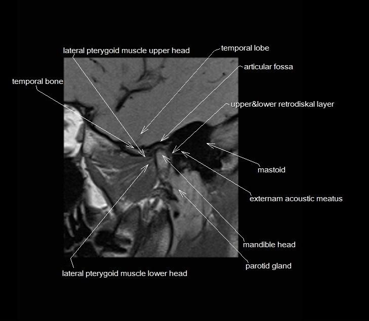 Temporomandibular Joint Anatomy Mri Tmjs Anatomy Free Sagittal
