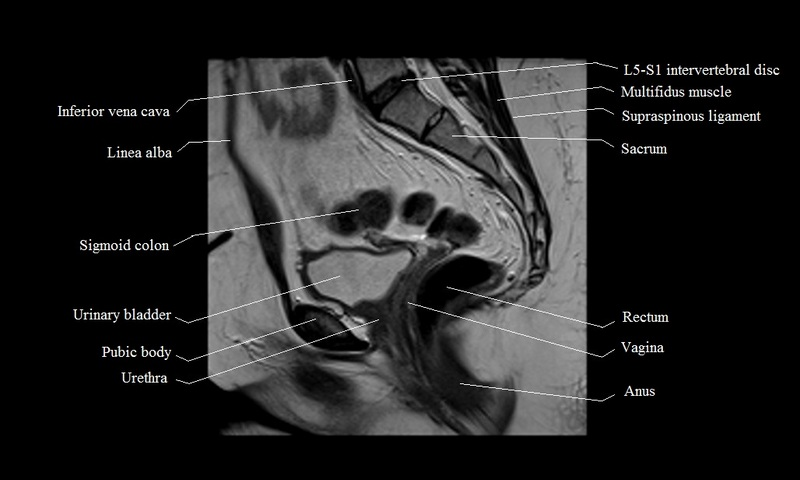 MRI female pelvis anatomy | free MRI sagittal cross sectional ...