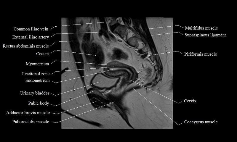 Pelvic anatomy mri