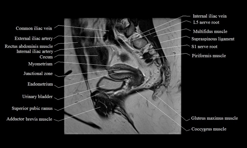 Mri Female Pelvis Anatomy Free Mri Sagittal Cross Sectional