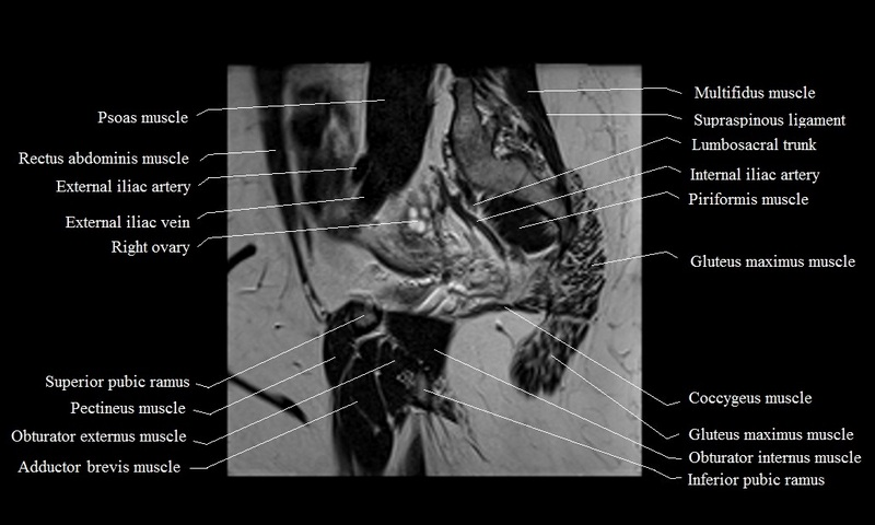 MRI female pelvis anatomy | free MRI sagittal cross sectional ...