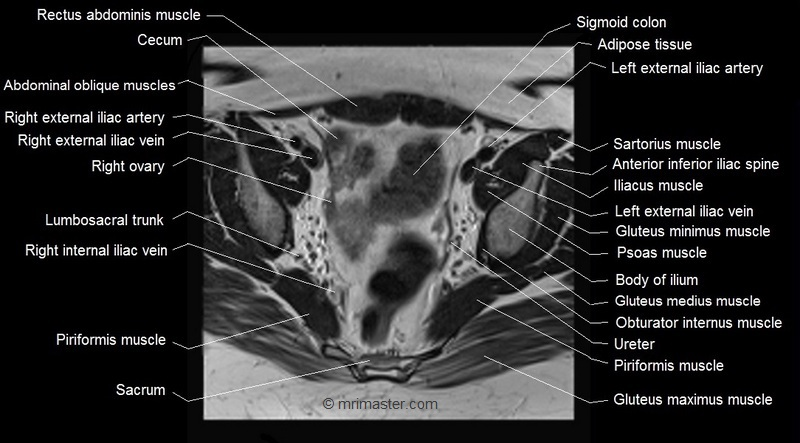 Pelvic anatomy mri 347818 - follow4more.info