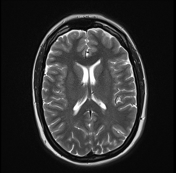 brain mri t2 axial images