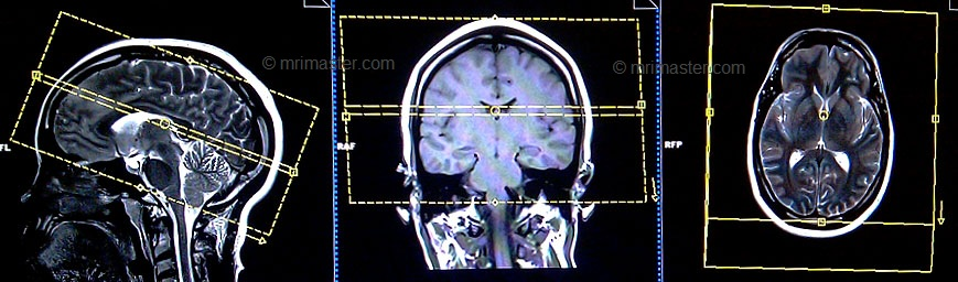 MRI brain protocols , planning , positioning and indications