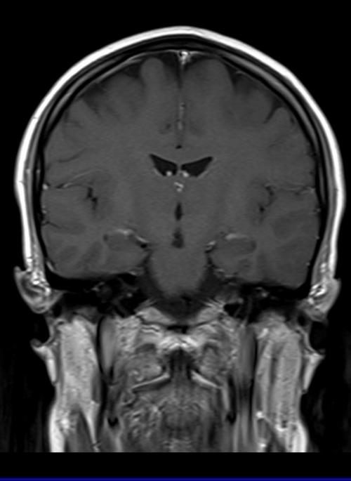 brain mri with conrtast brain mri t1 coronal post