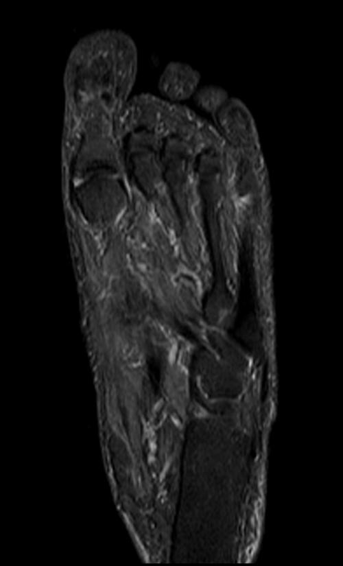 Foot Anatomy Mri Image collections - human body anatomy