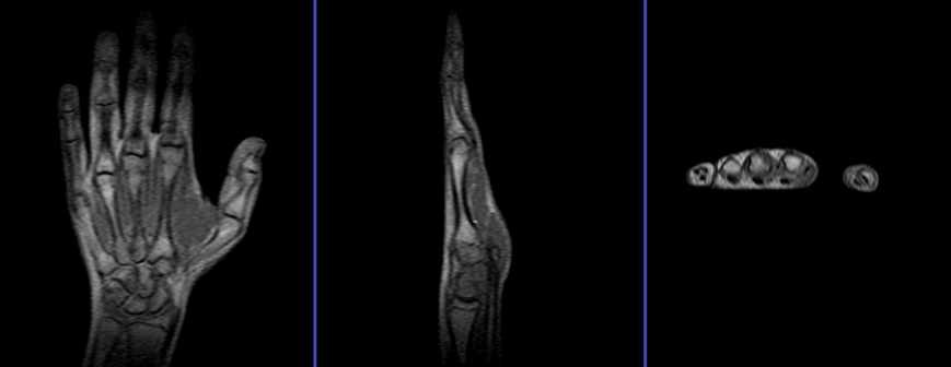 Hand Mri Protocols And Planning Indications For Mri Hand Scan