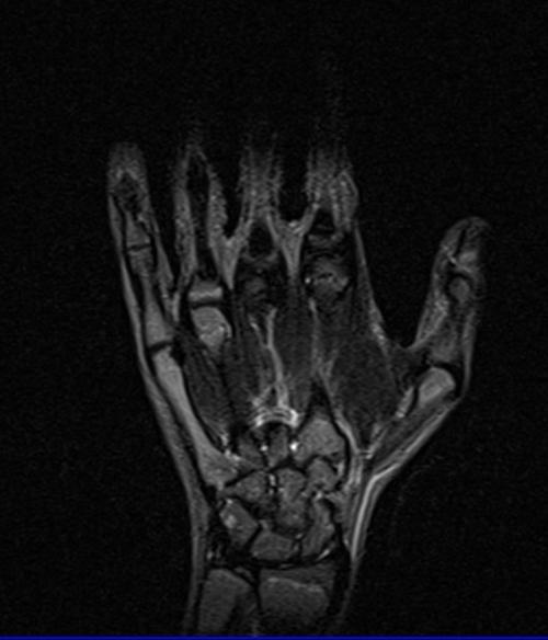 Hand anatomy mri