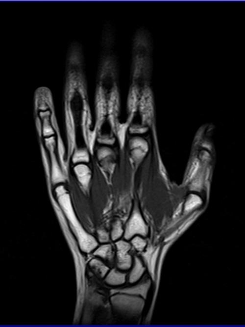 Hand Mri Coronal T1 Images