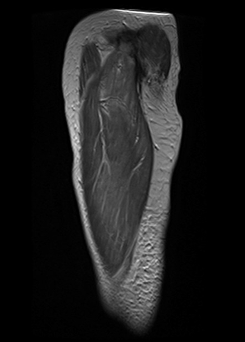 Thigh mri anatomy