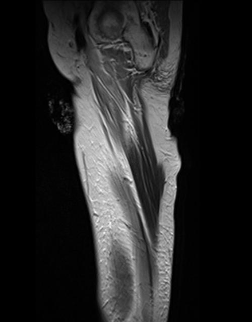Thigh anatomy mri
