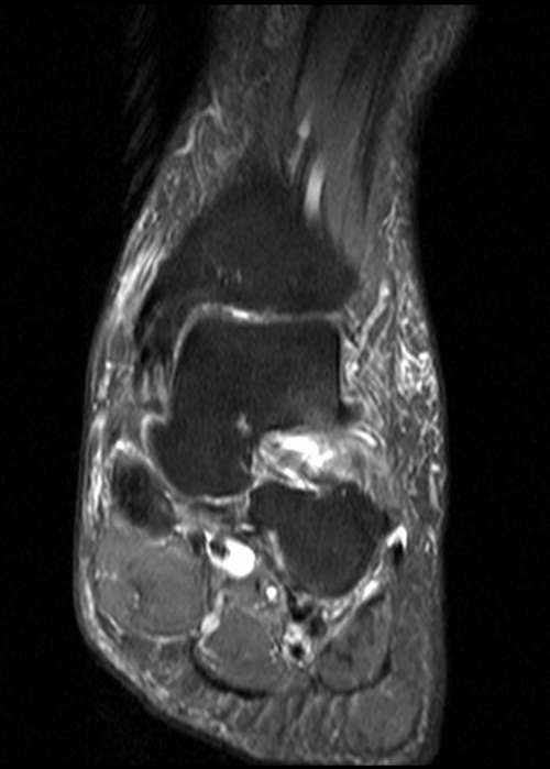 Ankle Mri Pd Fat Saturated Coronal Image