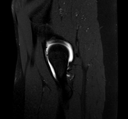 Hip Mri Anatomy 3226892 Togelmayafo