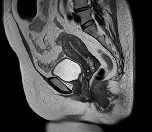 Atlas of MRI of the female pelvis