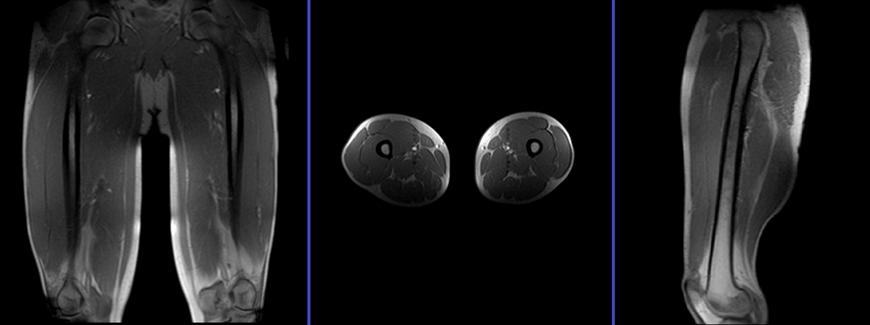 mri thigh (upper legs) planning | MRI hamstring protocols ...