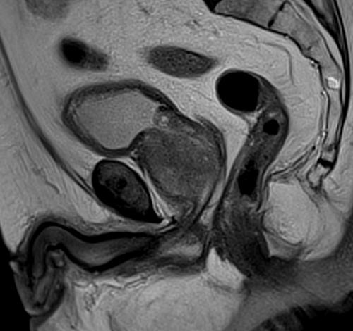 Prostate mri T2 sagittal high resolution images