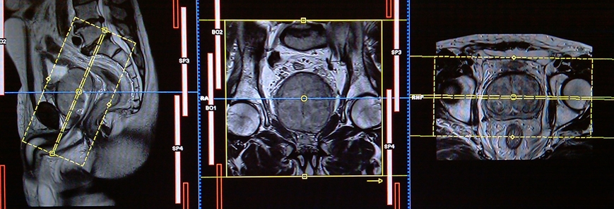 mri prostate cancer planning for different types of prostates