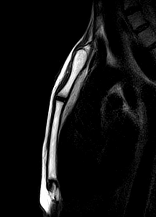 mri strnum sternoclavicular joint sagittal t2 image