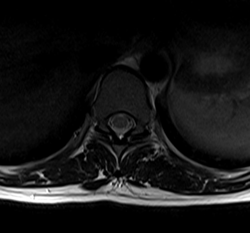 mri t spine axial t2  image