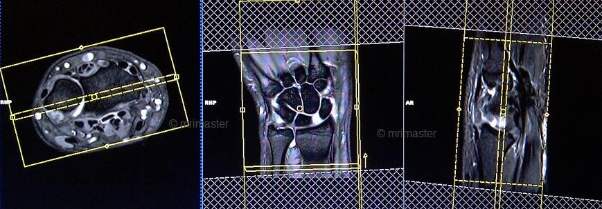 wrist MRI planning | MRI wrist protocols | indications for