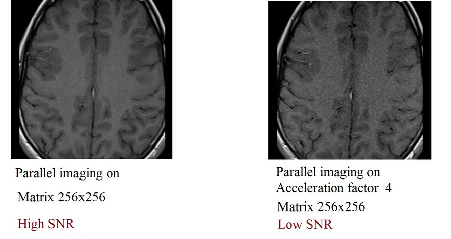 signal-to-noise ratio (SNR) in MRI | factors affecting SNR