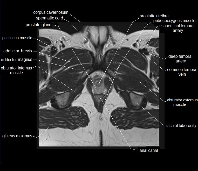 MRI pelvis anatomy | free male pelvis axial anatomy