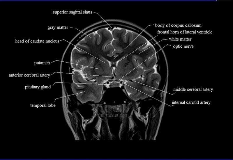Brain Anatomy Mri Coronal Brain Anatomy Free Mri Cross Sectional