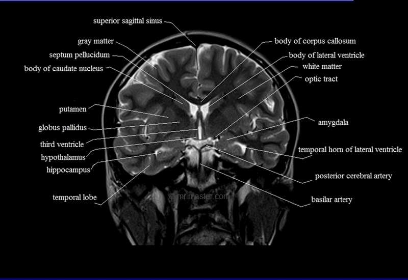 Brain Anatomy Mri Coronal Brain Anatomy Free Mri Cross Sectional